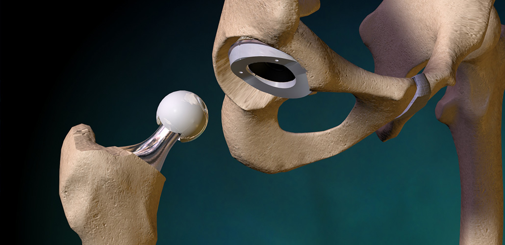 Hip Arthroplasty / استبدال مفصل الورك