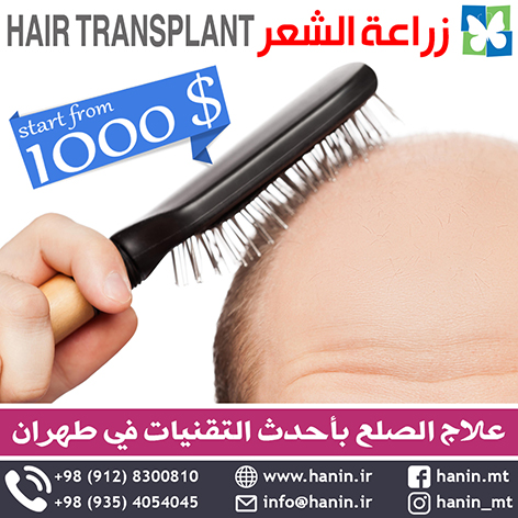 زراعة الشعر / Hair Transplant