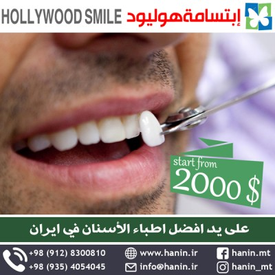 hollywood-smile2